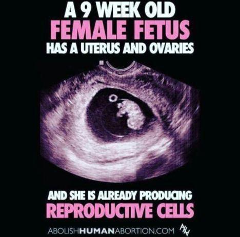 a66db27f907aa186cf0ee26e3afd2f9f--choose-life-women-rights.jpg